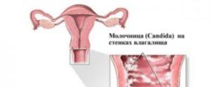 Как можно заразиться молочницей женщине