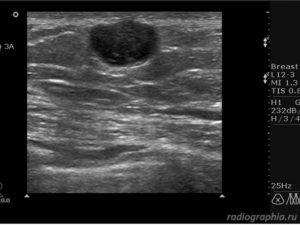 Анэхогенные образования в молочной железе