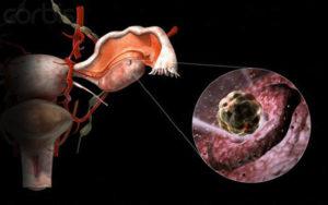 Болит яичник во время овуляции