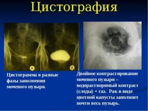 Цистография мочевого пузыря у детей