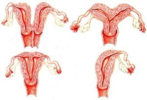 Форма матки грушевидная что означает