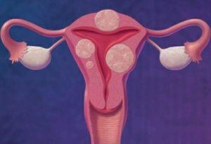 Может ли быть температура при миоме матки