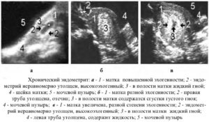 Особенности хронического метрита матки