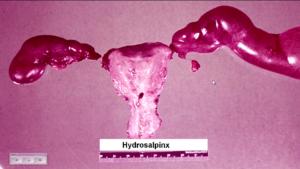 Гидросальпинкс при беременности