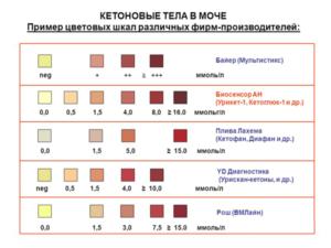 Повышены кетоны при беременности в моче