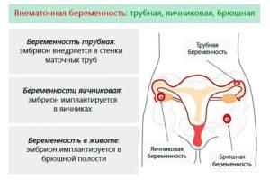 Что делать, если болят яичники при беременности на ранних сроках