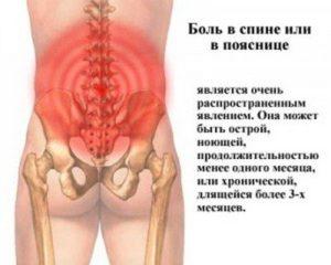 Боль в области таза сзади у женщин