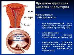 Причины маленького эндометрия