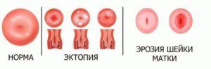 Что называют цервикальной эктопией шейки матки