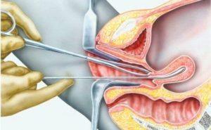 Что такое РДВ в гинекологии
