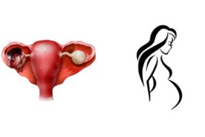 Симптомы разрыва яичника у женщин