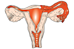 Перед месячными болит матка