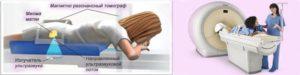 Как проводится ФУЗ-абляция миомы матки