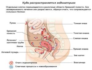 Симптомы эндометриоза кишечника