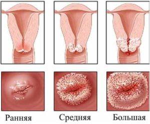 Эрозия шейки матки у нерожавшей девушки