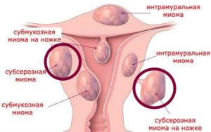 Лечение миомы матки небольших размеров