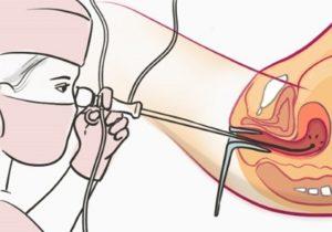 Характер выделений после гистероскопии матки