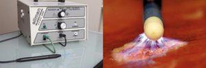 Лечение эрозии шейки матки Сургитроном