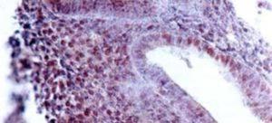 Рыхлый эндометрий что это значит