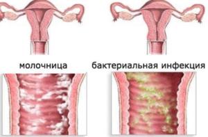 Бывает ли зуд при молочнице