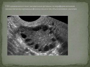 Единичные фолликулы в яичниках