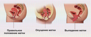 Симптомы и лечение народными средствами при опущении матки