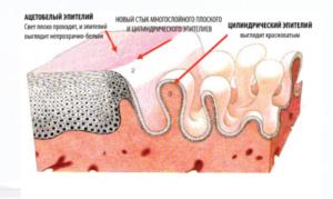 Что такое ацетобелый эпителий шейки матки