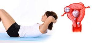 Какие упражнения можно делать при миоме матки
