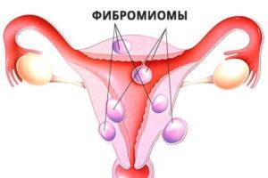 Лечение фиброматоза матки