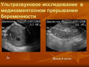 Первые месячные после медикаментозного прерывания беременности