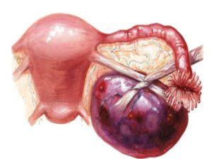 Рак придатков симптомы у женщин