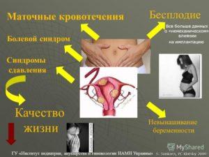 Причины кровотечения из матки