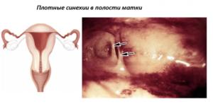 Синехии полости матки