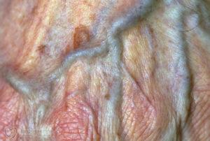 Опухла половая губа при беременности