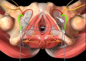 Операция при выпадении матки