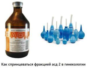 АСД фракция 2 при бесплодии