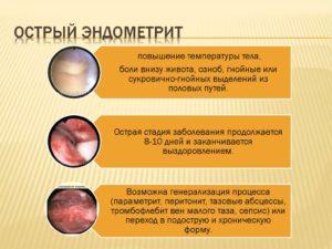 Симптомы и лечение хронического эндометрита