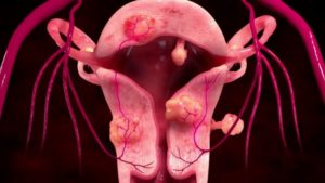 Как улучшить кровоток в матке