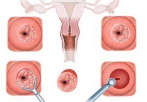Причины псевдоэрозии шейки матки