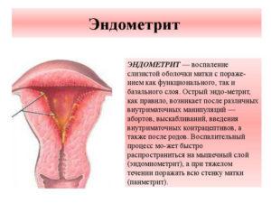 Симптомы воспаления матки