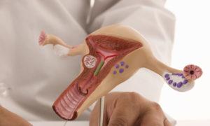 Можно ли идти к гинекологу с месячными