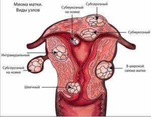 Интерстициальный и интрамуральный миоматозные узлы