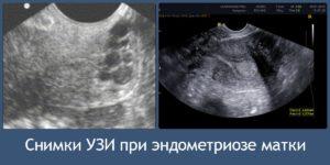 Признаки эндометриоза на узи