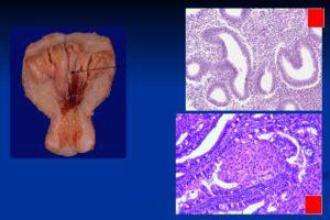Что такое железистая гиперплазия эндометрия