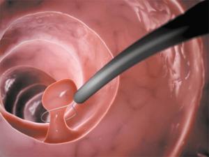 Удаление полипа матки гистероскопией