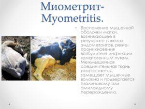 Что такое миометрит