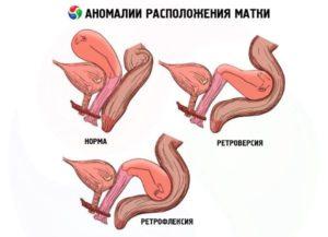 Расположение шейки матки