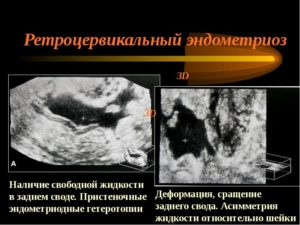 Что такое ретроцервикальный эндометриоз