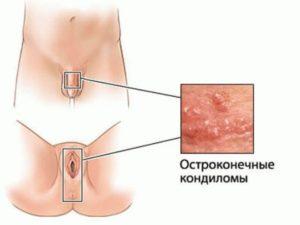 Воспаление малых губ у женщин