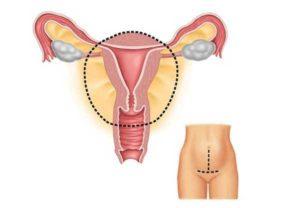 Лечение гиперплазии эндометрия народными средствами
